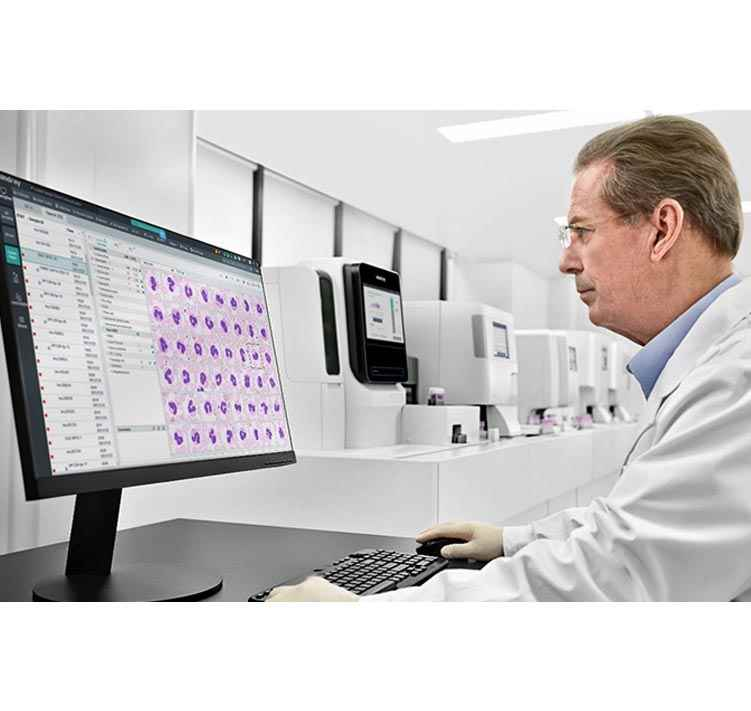 Mindray Launches New MC-80 Automated Digital Cell Morphology Analyzer, Taking Morphology Analysis to the Next Level