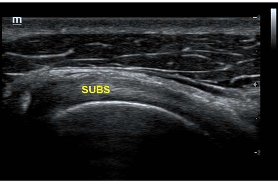 Subscapular Muscle Tendon