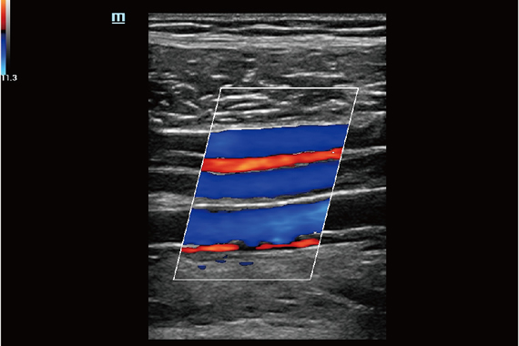Tibial Vein and Artery