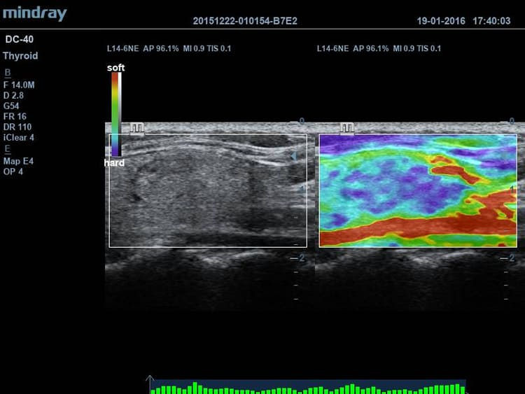Natural Touch Elastography