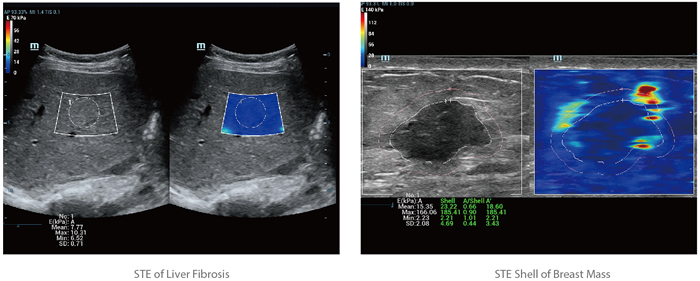 Sound Touch Elastography (STE)