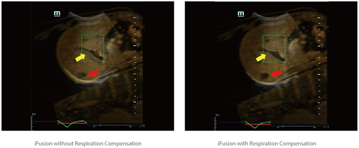 iFusion with Respiration Compensation