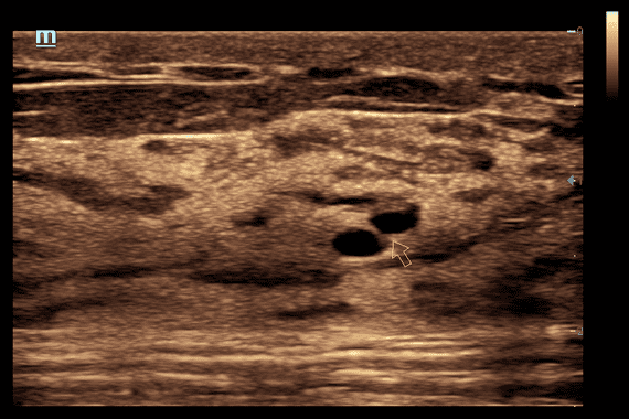 Dilation of Mammary Duct