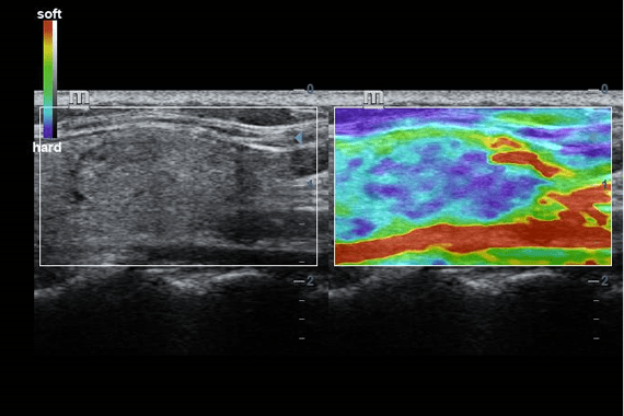 Natural touch elastography of thyroid mass